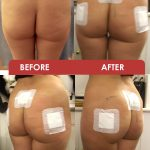 before-&-After-Buttock-2