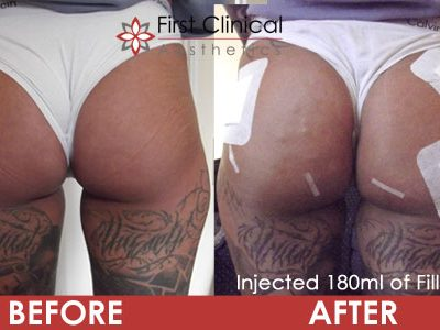 180ml2-before-&-after-buttock